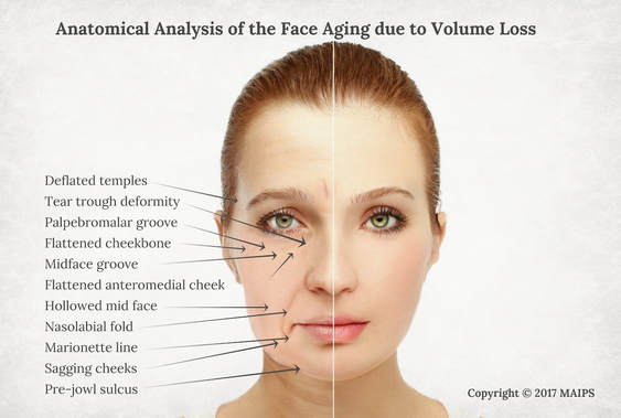 Facial Volume Loss. Aging and Facial Sagging Due to the Age Related ...