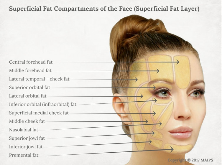 Subcutaneous superficial fat layer in the face (superficial fat pockets/superficial fat pads): forehead, lateral temporal-cheek, lateral and inferior orbital, nasolabial etc