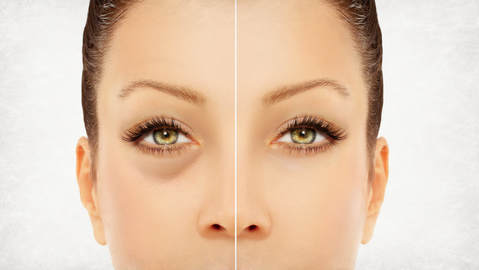 Under the eye fillers - MAIPS - Medical Aesthetics Information