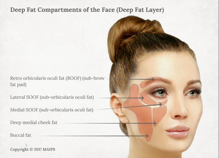 Deep fat layer of the face. Deep fat compartments (deep fat pockets): ROOF, lateral SOOF, medial SOOF, medial cheek, buccal fat