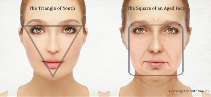 Facial shape changes with the age. Face starts sagging. The triangular shape in the youth becomes squared as we age. The triangle of youth turns into a square